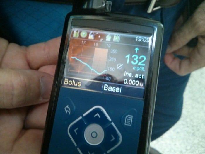 Minimed 640G el nuevo dispositivo de Medtronic