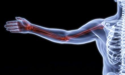 Las personas con diabetes tienen más riesgo de padecer fracturas óseas