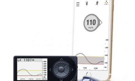 Dexcom G5 permite tomar decisiones terapéuticas sin glucemias capilares
