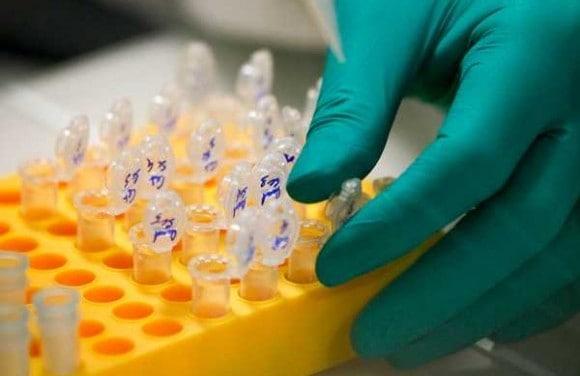 Los niveles de proteína de angiopoyetina-2 aumentan el riesgo de muerte en diabetes tipo 2