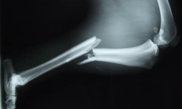La diabetes afecta a la curación de una fractura ósea