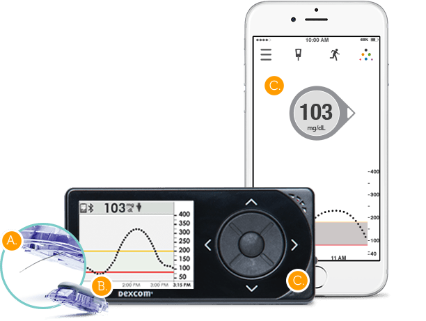 Dexcom G5 Mobile ya disponible en Android