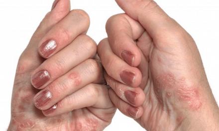 La psoriasis dispara el riesgo de diabetes tipo 2 según estudio