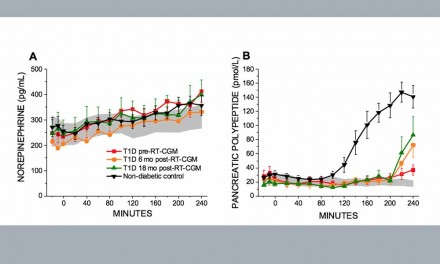 La monitorización podría reducir hipoglucemias severas