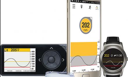 Según estudio HypoDE Dexcom reduce un 72% las hipoglucemias en tipo1