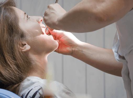 El cáncer oral: síntomas y formas de prevenirlo